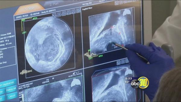 Health Watch: Pinpointing prostate cancer