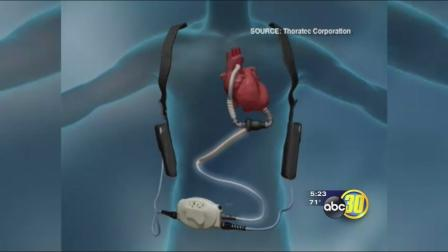 Healing Hearts Without A Transplant