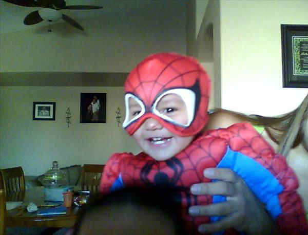 Spider baby Isaac Quiralte 1 year old <span class=meta>(KFSN Photo&#47; uReport.abc30.com)</span>