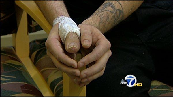 Man replaces severed thumb with toe