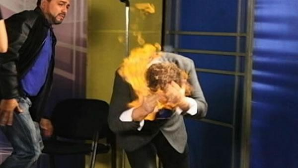 Chico man burned while doing magic on Dominican TV