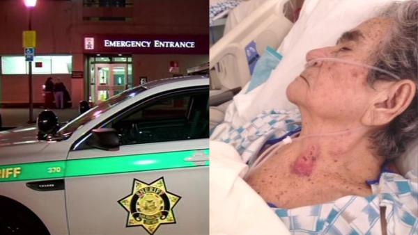 Woman attacked by psychiatric patient at SF General Hospital