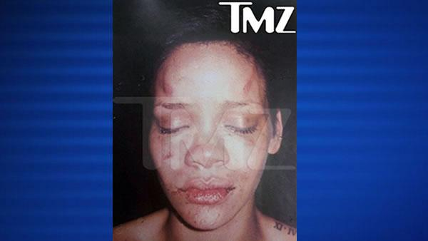 Rihanna Beaten Up Photo Chris