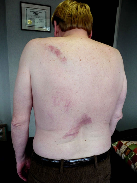 Perry Litchfield was beaten by fellow concert-goers after catching a guitar that Prince threw into the crowd. <span class=meta>(Photo&#47;Photo submitted by Perry Litchfield via uReport)</span>