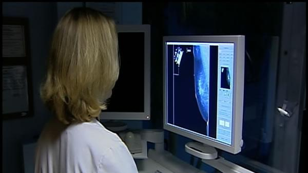 UCSF study may impact breast cancer treatment