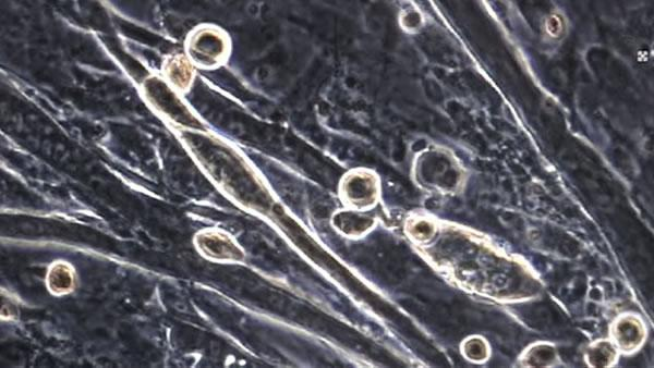 Stem cell research could help aging muscles
