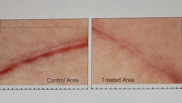 Doctors develop elastic sheet to reduce scars