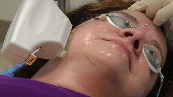 Light device may help keep skin looking young