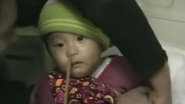 Doctors remove chopstick from boy's nose