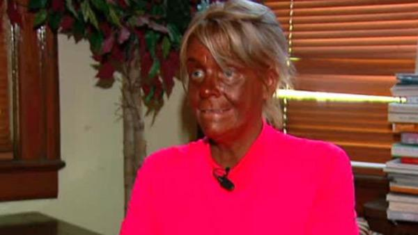 Tanning mom's husband comes to her defense