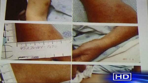 Photos of injuries introduced in ex-cop rape trial