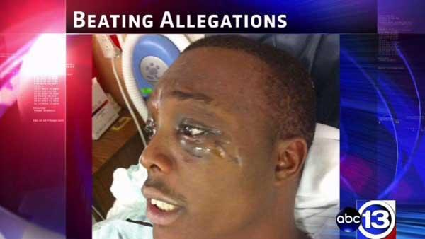 Mom: Houston police brutally beat son during arrest