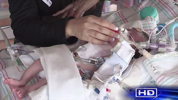 Surgeons save life of baby born with heart outside body