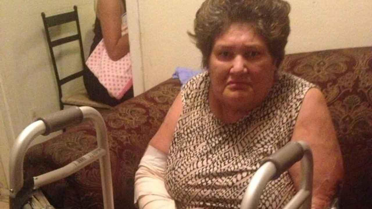 Woman mauled by dogs in northeast Houston released from hospital, still recovering