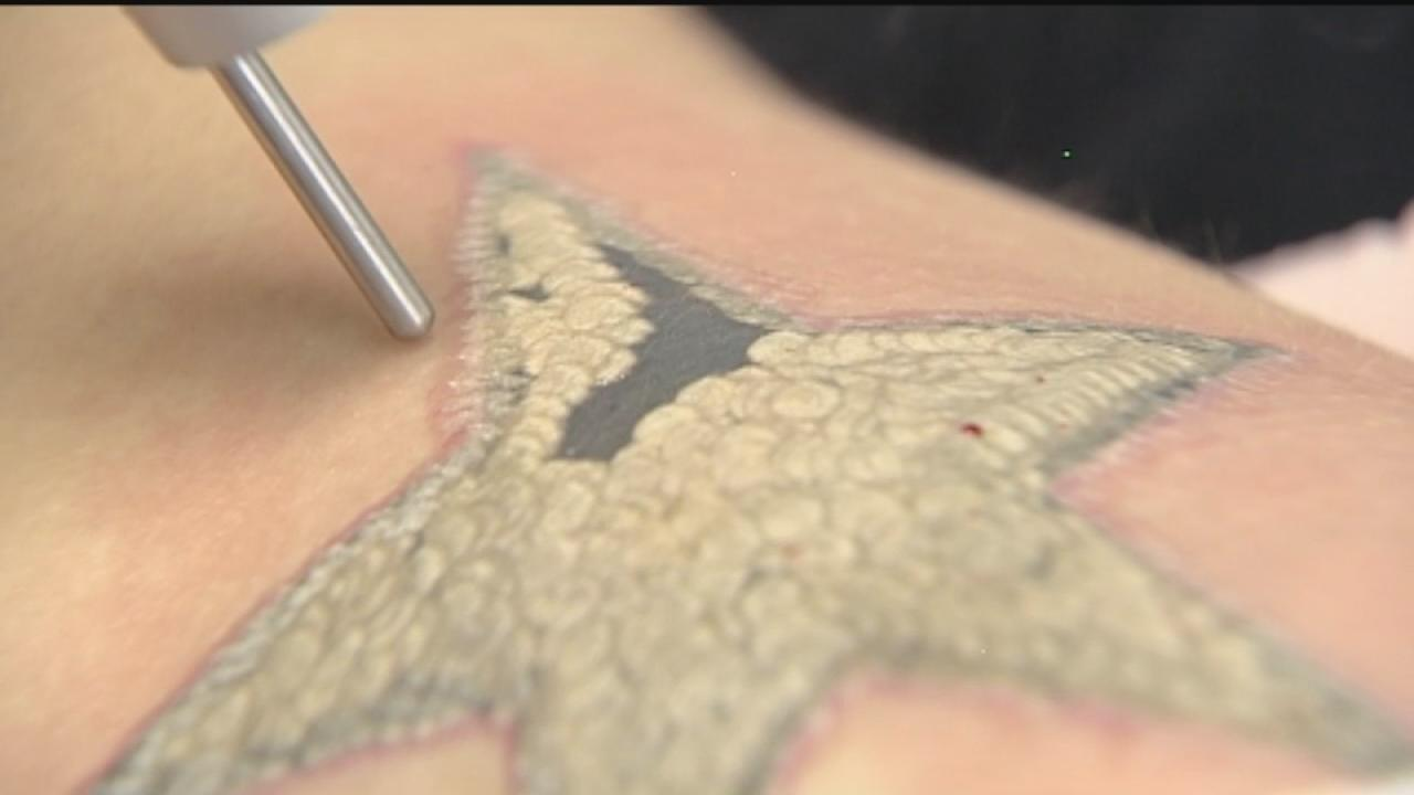 Tattoo removal the painful process explained for How to get rid of a tattoo at home