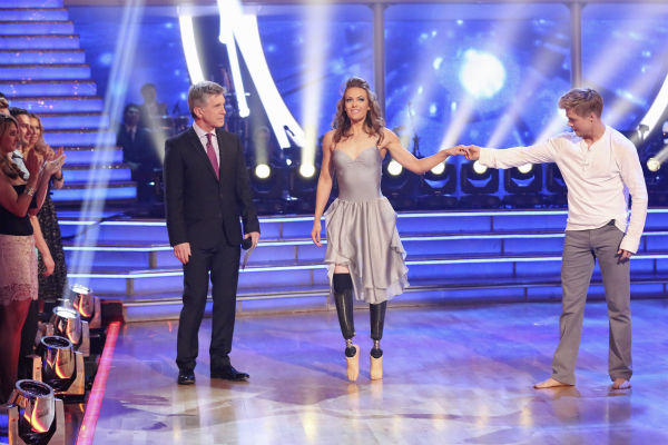Amy Purdy and Derek Hough appear on week 3 of ABC&#39;s &#39;Dancing With The Stars&#39; on March 31, 2014. They received 36 out of 40 points from the judges for their Contemporary routine. Purdy had dedicated the dance to her father, who had donated a kidney to her after she battled bacterial meningitis in 1999. The disease also caused her to lose part of her legs. <span class=meta>(ABC Photo &#47; Adam Taylor)</span>