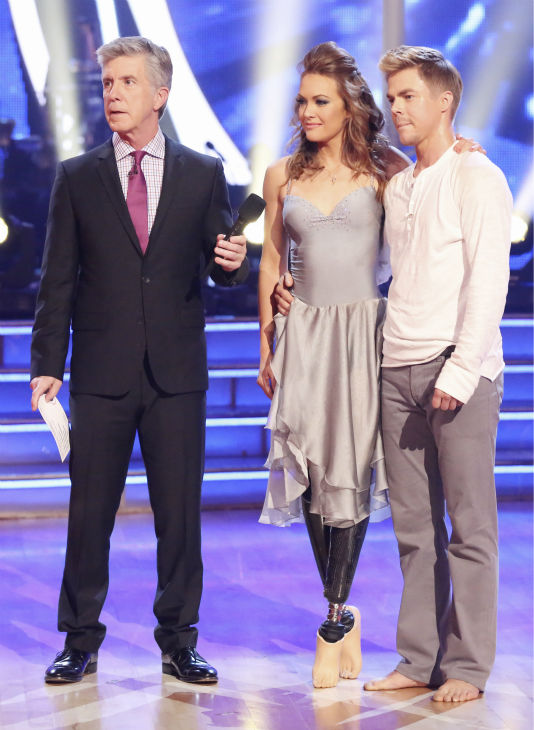 Amy Purdy and Derek Hough await their fate on week 3 of ABC&#39;s &#39;Dancing With The Stars&#39; on March 31, 2014. They received 36 out of 40 points from the judges for their Contemporary routine. Also pictured: Co-host Tom Bergeron. Purdy had dedicated the dance to her father, who had donated a kidney to her after she battled bacterial meningitis in 1999. The disease also caused her to lose part of her legs. <span class=meta>(ABC Photo &#47; Adam Taylor)</span>