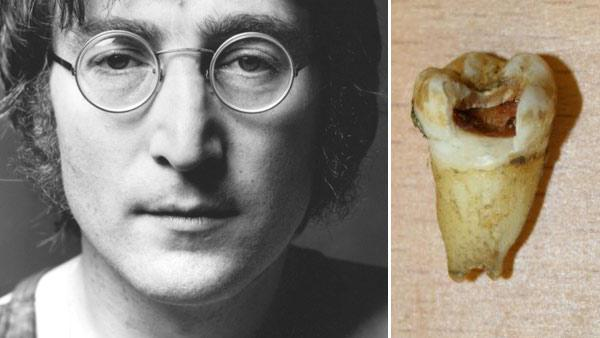 John Lennon appears in an undated photo from his official website. / John Lennons molar appears in a photo from Omega Auctions. - Provided courtesy of JohnLennon.com / OmegaAuctions.com