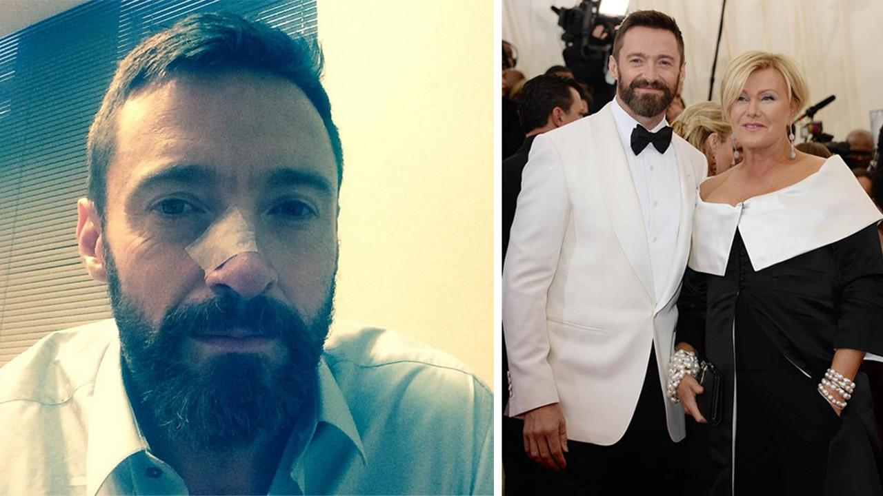 Hugh Jackman posted this photo of himself on his Instagram page on May 8, 2014, after his second skin cancer treatment. / Hugh Jackman and wife Deborra Lee appear at the Metropolitan Museum of Arts 2014 Costume Institute Benefit gala in on May 5, 2014.