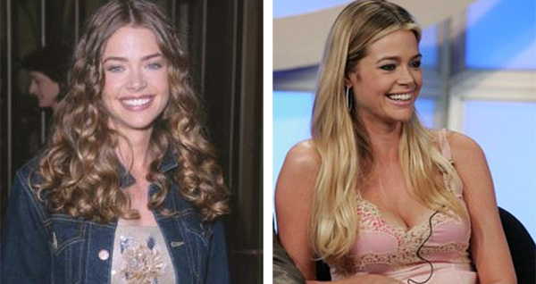 Denise Richards revealed her experiences with breast implants in an interview with radio shock jock Howard Stern in June of 2009. She said she had three different breast augmentation surgeries done before finding just the right implant size. Pictured:  On the left, Denise Richards appears at the event for the 1999 film &#39;Drop Dead Gorgeous.&#39; At right, she appears in at the event of &#39;Sex, Love &amp; Secrets&#39;.It is unclear whether Denise Richards underwent cosmetic procedures prior to appearing at the event for &#39;Drop Dead Gorgeous.&#39; <span class=meta>(Wire Image &#47; ABC)</span>