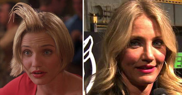 Cameron Diaz underwent a nose job in 2006 for medical reasons after suffering a surfing accident three years earlier.  Pictured: Cameron Diaz appears in a scene from &#39;There&#39;s Something about Mary&#39; in 1998. &#47; Cameron Diaz talks to OnTheRedCarpet.com at the Hollywood premiere of &#39;The Green Hornet&#39; on January 11, 2011.  <span class=meta>(Twentieth Century Fox Film Corporation &#47; OTRC)</span>