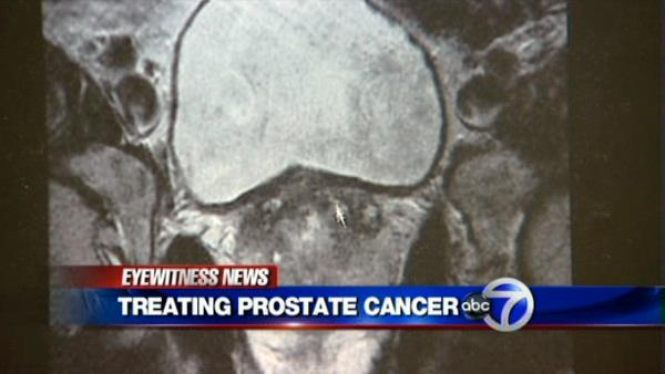 VIDEO: Prostate Cancer treatment