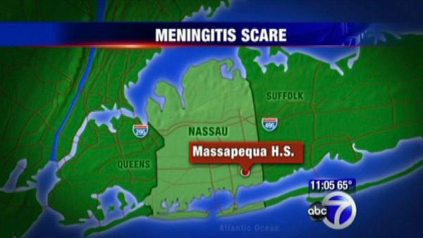 Teen diagnosed with bacterial meningitis