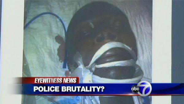 Brooklyn teen may be victim of NYPD brutality