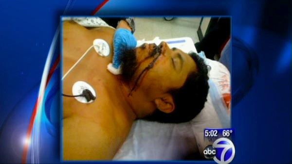 Victim in cab driver attack to meet with mayor