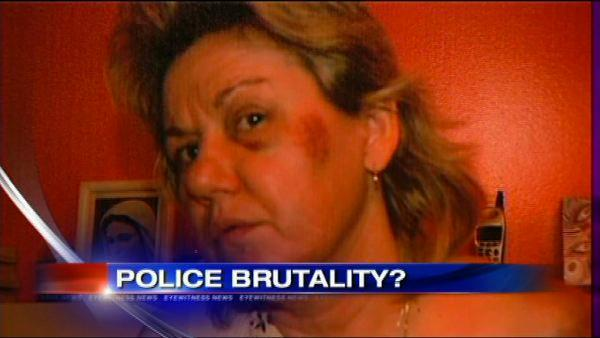 Woman claims police beat her over dog poop disagreement