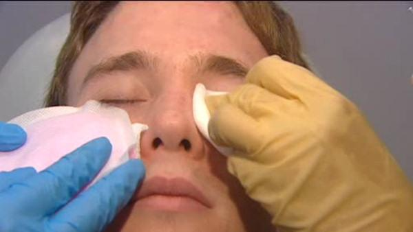 More men opting for plastic surgery