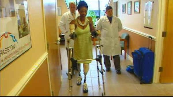 Young mother can walk again thanks to prosthetics