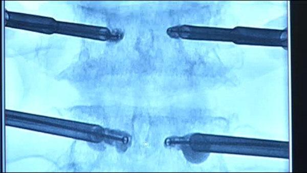 New non-surgical way to treat back pain