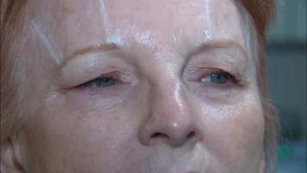Noninvasive therapy gives skin a lift