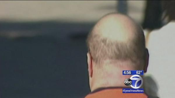 Could new development be end of balding?