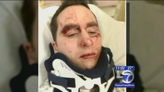 Victim in possible knockout attack speaks out