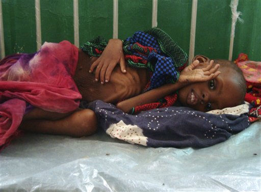 A malnourished child from southern Somalia lies on bed at Banadir hospital, Mogadishu Friday, July 8, 2011 after fleeing from southern Somalia. Thousands of people have arrived in Mogadishu over the past two weeks seeking assistance and the number is increasing by the day, due to lack of water and food. Even Somalia&#39;s top militant group is asking the aid agencies it once banned from its territories to return. Thirsty livestock are dying by the thousands, and food prices have risen beyond what many families can afford. &#40;AP Photo&#47;Farah Abdi Warsameh&#41; <span class=meta>(AP Photo&#47; Farah Abdi Warsameh)</span>