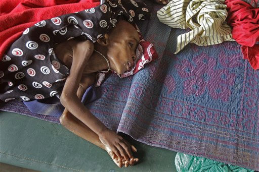 "<div class=""meta ""><span class=""caption-text "">A unidentified child awaits treatment in a field hospital of Doctors Without Borders, MSF, in the town of Dadaab, Kenya, Monday, July 25, 2011.  A U.N. agency is hosting an emergency meeting in Rome on Monday July 25, to mobilize action to fight famine in Somalia, Kenya and other drought-hit nations in East Africa, estimating that more than 11-million people need help in the drought-hit region. (AP Photo/Schalk van Zuydam) (AP Photo/ Schalk van Zuydam)</span></div>"