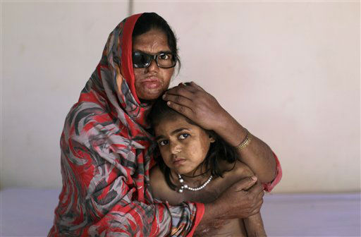 Pakistani acid attack survivor, Azim Mai, 35, holds her daughter Shaziya, 8, while sitting on a bed waiting to have a massage session for their wounds, at the Acid Survivors Foundation &#40;ASF&#41; in Islamabad, Pakistan, Tuesday, Dec. 13, 2011. Azim Mai&#39;s husband allegedly threw acid in her face and their daughter Shaziya last year after she refused to sell their two boys to a man in Dubai to use as camel racers. Rights activists Tuesday praised the laws, which stiffened the punishment for acid attacks and also criminalized practices such as marrying off young girls to settle tribal disputes and preventing women from inheriting property. The Senate provided final approval for two bills containing the new laws Monday. &#40;AP Photo&#47;Muhammed Muheisen&#41; <span class=meta>(AP Photo&#47; Muhammed Muheisen)</span>