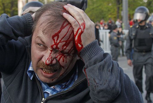 "<div class=""meta ""><span class=""caption-text "">A wounded opposition protester winces in pain during a rally in Moscow on Sunday, May 6, 2012. Riot police in Moscow have begun arresting protesters who were trying to reach the Kremlin in a demonstration on the eve of Vladimir Putin's inauguration as president. (AP Photo/Mikhail Metzel) (AP Photo/ Mikhail Metzel)</span></div>"