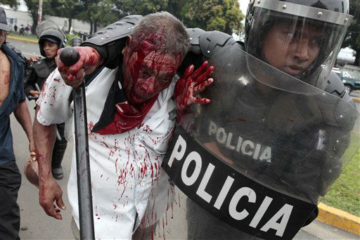 "<div class=""meta ""><span class=""caption-text "">An injured former soldier of the Sandinista Popular Army (EPS) is detained by riot police during clashes after they blocked the entrance to the international airport along the Pan American highway to demand the government of Nicaragua's President Daniel Ortega provide them social benefits as veterans of war, in Managua, Nicaragua, Thursday, May 31, 2012. The Sandinista popular army fought to defend Ortega in the 1980's when the U.S. government, enmeshed in the Cold War, tried to overthrow him by backing Contra rebels. (AP Photo/Esteban Felix)</span></div>"