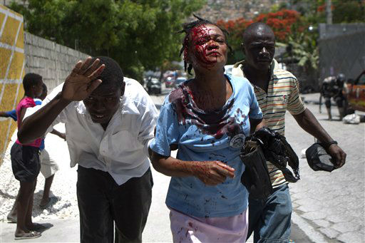A female bystander who was mistakenly hit by a stone aimed at police, is led in search of an ambulance, during a demonstration protesting a government plan to destroy hillside shanties for a flood-control project, in Port-au-Prince, Haiti, Monday, June 25, 2012. More than 1,000 demonstrators marched, chanting threats to burn down the relatively affluent district if the authorities flatten their homes. Many of the threatened homes are in Jalousie, a cinderblock shantytown that spreads across a mountainside alongside the relatively affluent city of Petionville that makes up the Port-au-Prince metro area.  &#40;AP Photo&#47;Dieu Nalio Chery&#41; <span class=meta>(AP Photo&#47; Dieu Nalio Chery)</span>
