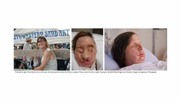 "<div class=""meta ""><span class=""caption-text "">Brigham and Women's Hospital has released the first post-surgery photograph of Charla Nash, who received a full face transplant in late May of this year at Brigham and Women's Hospital. Nash was mauled by her friend's chimp in Connecticut in 2009.</span></div>"