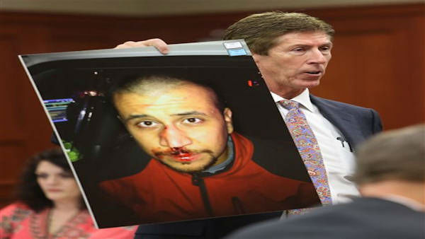 Defense counsel Mark O&#39;Mara holds up a photo of George Zimmerman from the night of the Trayvon Martin shooting during the trial of George Zimmerman at the Seminole County Criminal Justice Center, in Sanford, Fla., Friday, July 12, 2013. Zimmerman is charged in the 2012 shooting death of unarmed teenager Trayvon Martin. &#40;AP Photo&#47;Orlando Sentinel, Joe Burbank, Pool&#41; <span class=meta>(&#40;AP Photo &#47; Joe Burbank)</span>