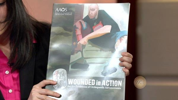 Wounded In Action: An Art Exhibition of Orthopaedic Advancements