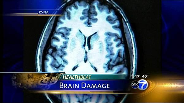Soccer headers bring brain damage risk