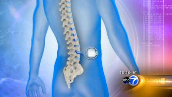 Device stimulates chronic pain relief