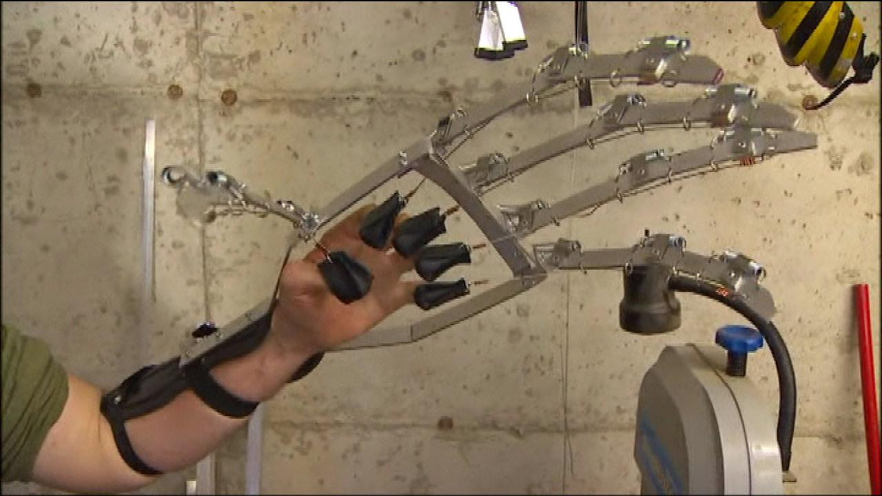 Boy born without fingers fitted with Robohand