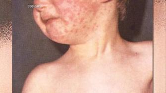 mumps outbreak, mumps symptoms