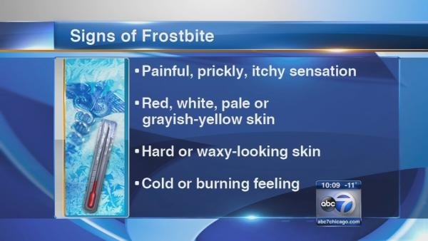 Doctors warn of frostbite danger